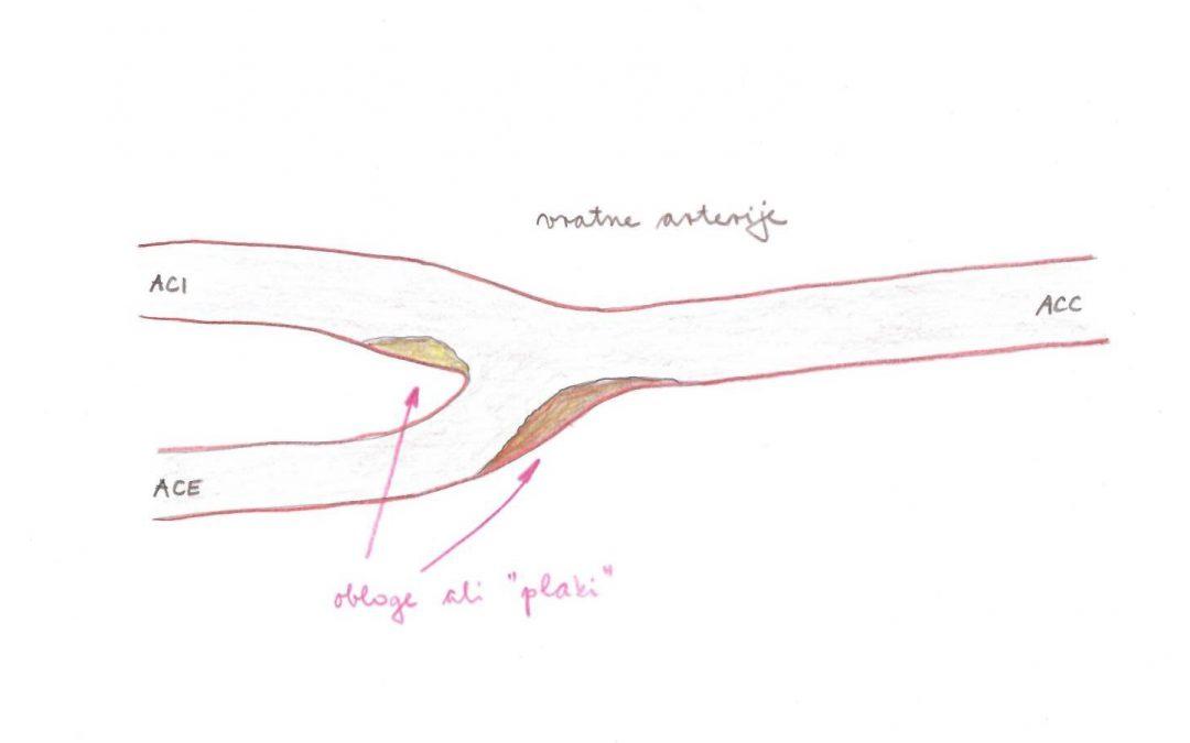 Ultrazvok vratnih arterij